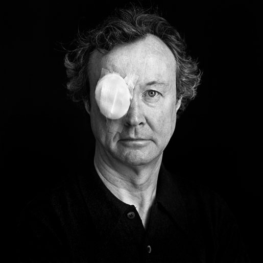 Michael O'Dea Michael O'Dea, Artist, after removal of foreign body from Right Eye