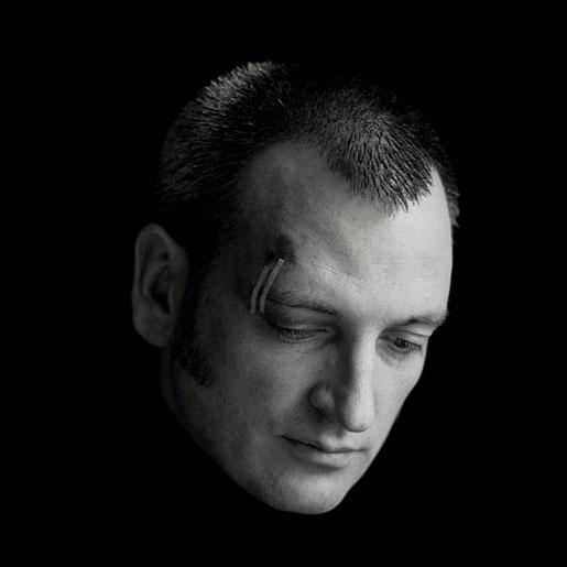 James Hanley James Hanley RHA. Artist after bicycle Accident